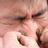 Liječenje Ubodom Pčele