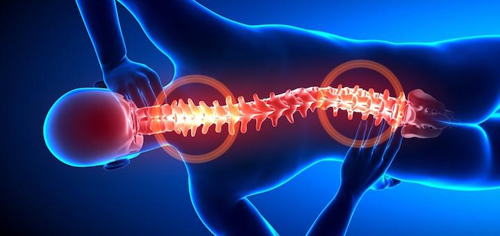 Ankilozantni spondilitis (AS): bol u leđima, s izobličenjem